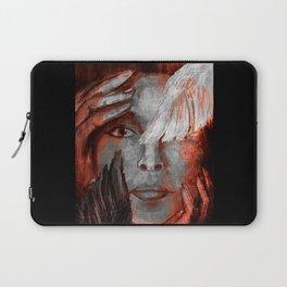 Vitiligo Laptop Sleeve