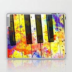 Colour Keys Laptop & iPad Skin