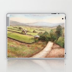 Yorkshire Farmland Laptop & iPad Skin