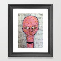 septic  Framed Art Print