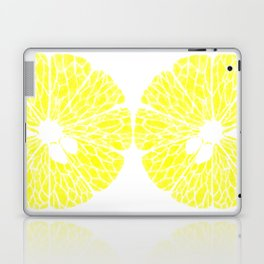 Lemonade Made Laptop & iPad Skin