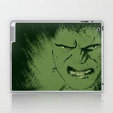 Incredible Laptop & iPad Skin