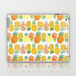 Pineapple Lineup Laptop & iPad Skin