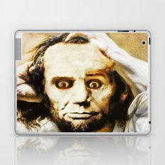 Abraham Lincoln's bewilderment Laptop & iPad Skin