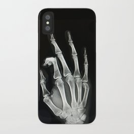 Everything is A-OK iPhone Case
