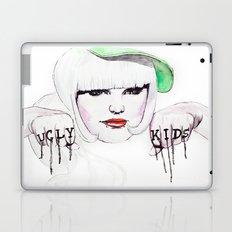 Ugly Kids Laptop & iPad Skin