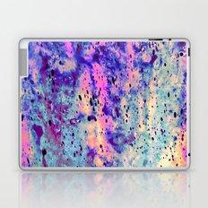 Exclusive Laptop & iPad Skin