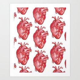 Open Heart Surgery Art Print