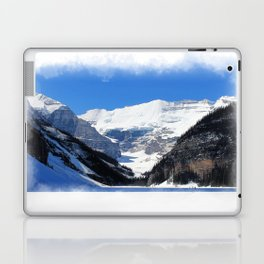 Lake Louise in Banff National Park Laptop & iPad Skin