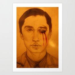 Bruised Eye. Art Print