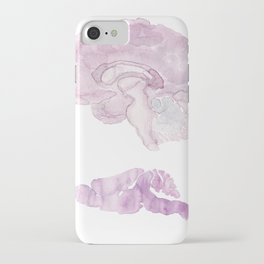 Human/Mouse iPhone Case