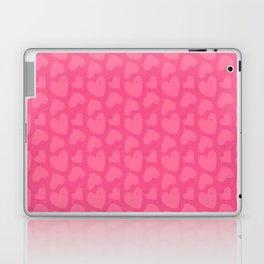 Lovey Hearts Laptop & iPad Skin