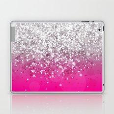 Glitteresques XXXIV Laptop & iPad Skin