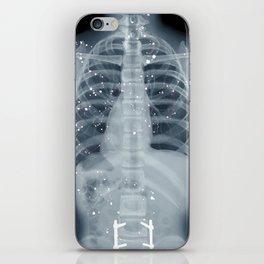 Situs Inversus iPhone Skin