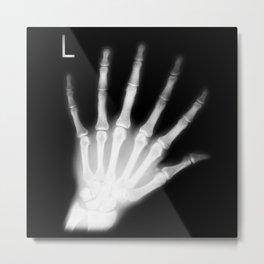 Extra Digit X-Ray Metal Print