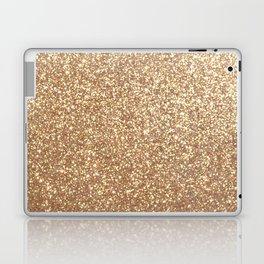 Copper Rose Gold Metallic Glitter Laptop & iPad Skin