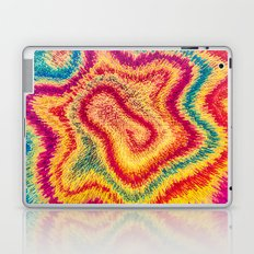 My Modern Tie-dye Laptop & iPad Skin