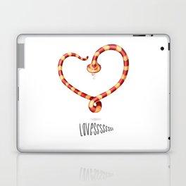 LOVESSSSssss Laptop & iPad Skin