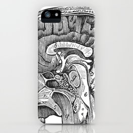 Cottage Physician - Vertical section of the brain iPhone Case