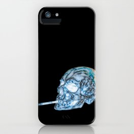 X RAY iPhone Case