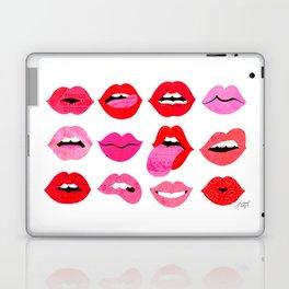 Lips of Love Laptop & iPad Skin