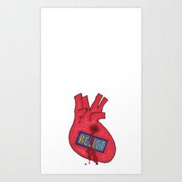 Rejected Pulmonary Art Print
