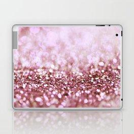 Pink Sparkle shiny glitter effect print - Sparkle Valentine Backdrop Laptop & iPad Skin