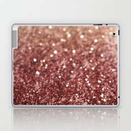 Cafe Au Lait Glitter #1 #shiny #decor #art #society6 Laptop & iPad Skin