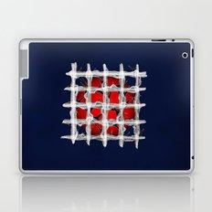 Suppress Laptop & iPad Skin