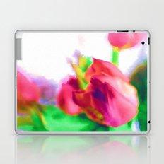 Harborough Tulips - Watercolour Paiting Laptop & iPad Skin