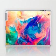 Join Laptop & iPad Skin
