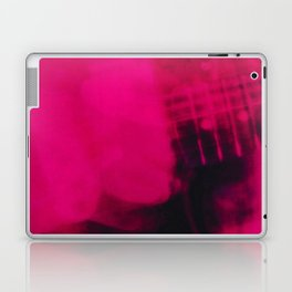 My Bloody Valentine - Loveless Laptop & iPad Skin