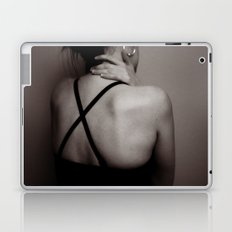 x marks the spot Laptop & iPad Skin