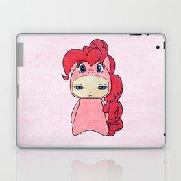 A Boy - Pinkie Pie Laptop & iPad Skin
