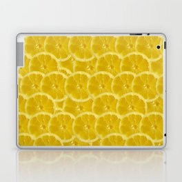 Lemon Pattern Laptop & iPad Skin