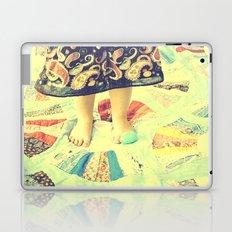 A Tisket A Tasket Laptop & iPad Skin