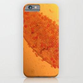 Dirus mal ar iPhone Case