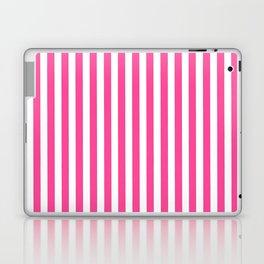 Neon pink white minimalist geometrical stripes Laptop & iPad Skin