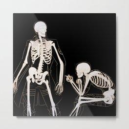 Eruri: Twin Skeletons Metal Print