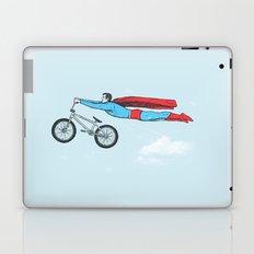 Nailed it! Laptop & iPad Skin