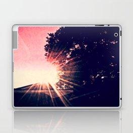 My Little Sunshine Laptop & iPad Skin