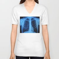 medical V-neck T-shirts featuring x ray medical radiography by tony tudor
