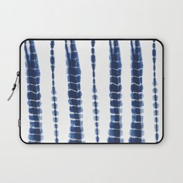 Indigo Blue Tie Dye Delight Laptop Sleeve