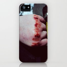 Lunchbox iPhone Case