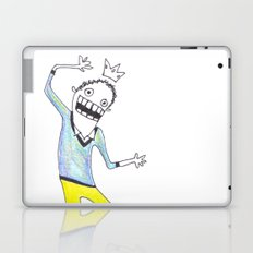 King Yellowpants Laptop & iPad Skin