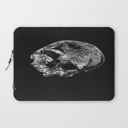 Human Skull Vintage Illustration  Laptop Sleeve