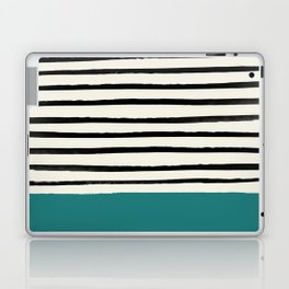Teal x Stripes Laptop & iPad Skin