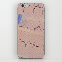 Colored pills on electrocardiogram strips iPhone Skin