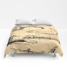 Fractures Comforters