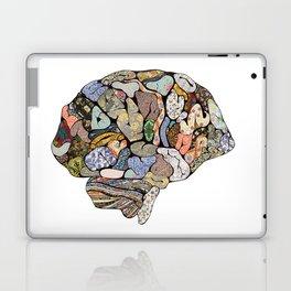 My Brain Looks Different Laptop & iPad Skin